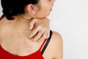 Bőrbetegség terhesség alatt