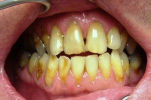 Roncsolt fogsor