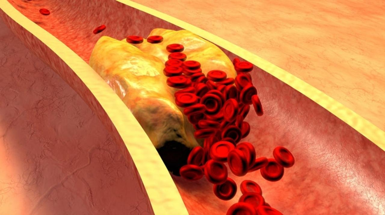 Magas koleszterin